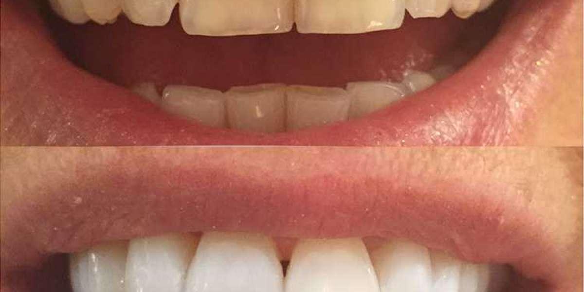 Windows Teeth Veneers Hull Registration Exe Download Professional Keygen