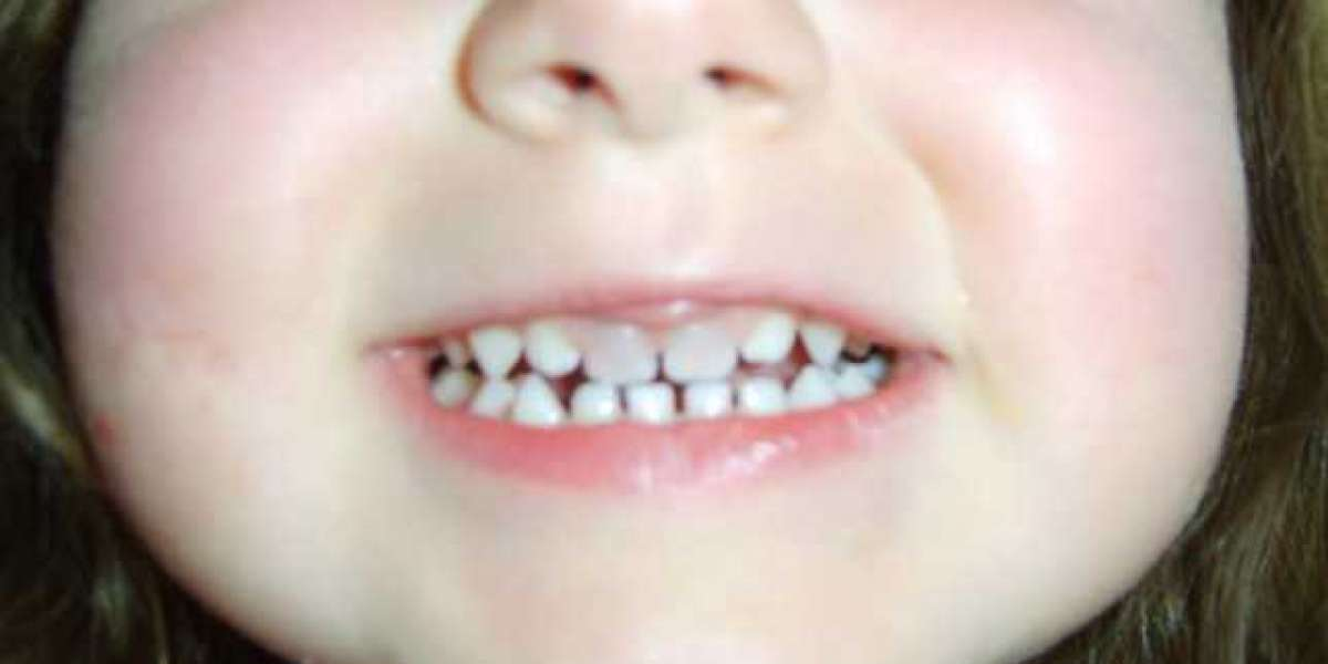 Children Teeth Black Stain Windows Torrent Ultimate Serial License Full Version 32
